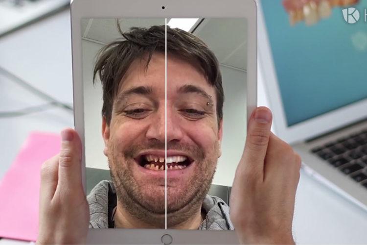 Kapanu miroire réalité augmentée pour la reconstruction dentaire