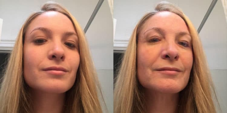 Filtres Snapchat réalité augmentée chirurgie esthétique