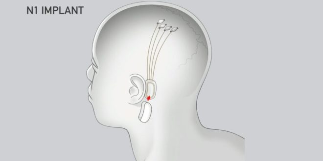 Neuralink John Carmack Oculus